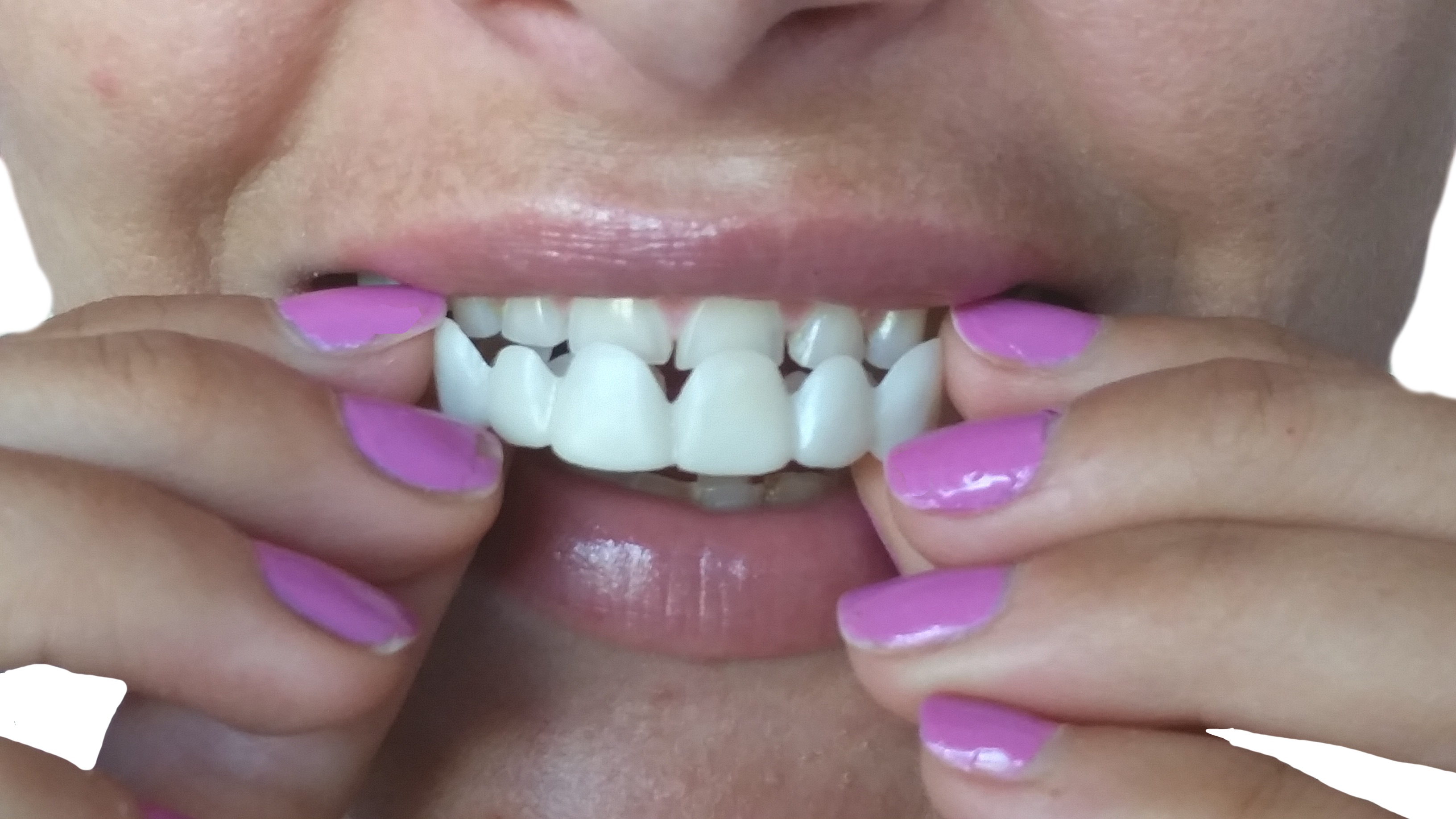 perfect smile veneers цена тюмень